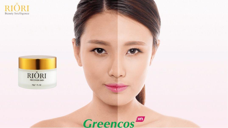 Kem tái tạo da mặt Riori Recover Skin trị nám da hiệu quả nhất