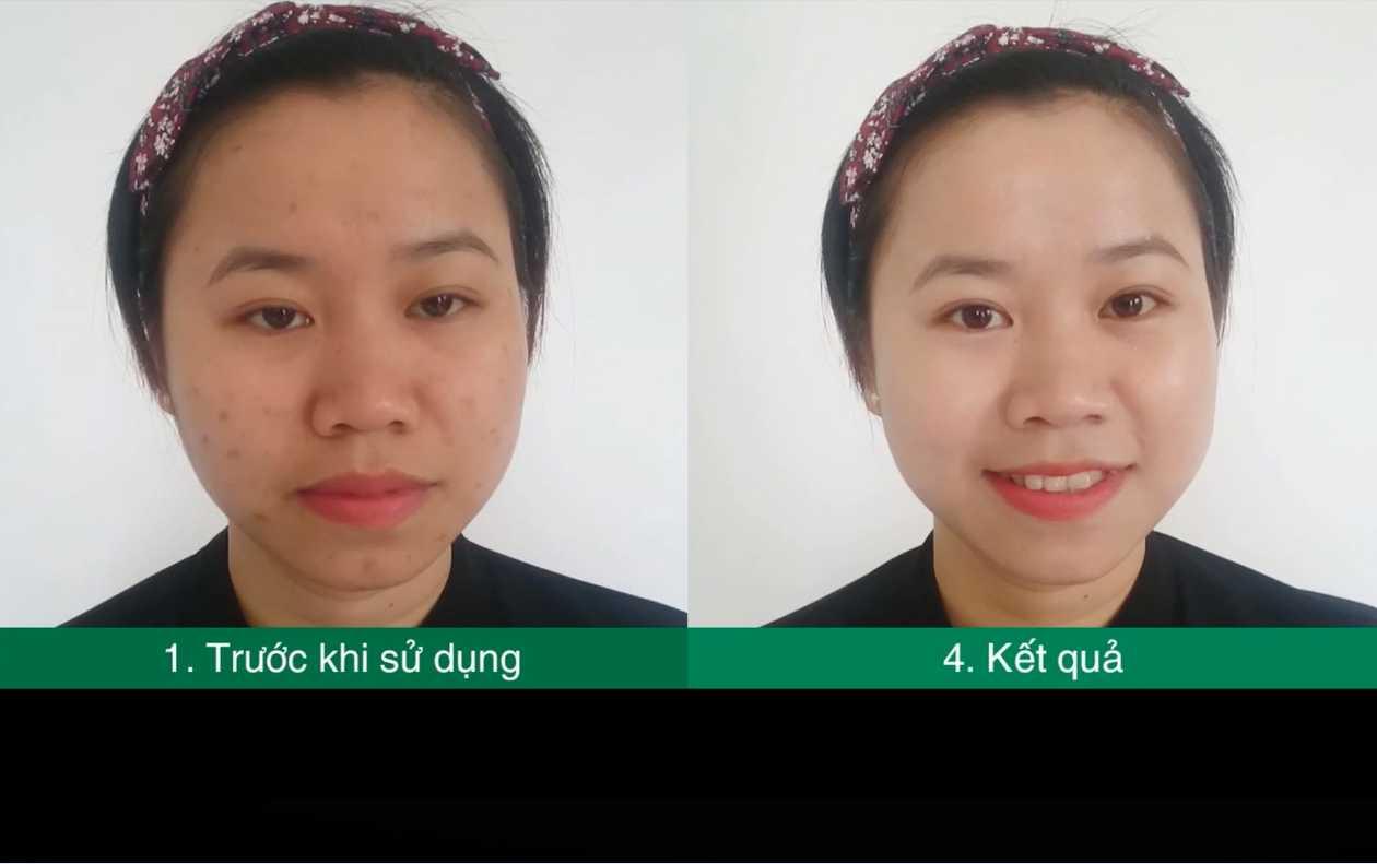 Hình ảnh trước và sau khi sử dụng phấn nước che khuyết điểm Riori BB Cushion