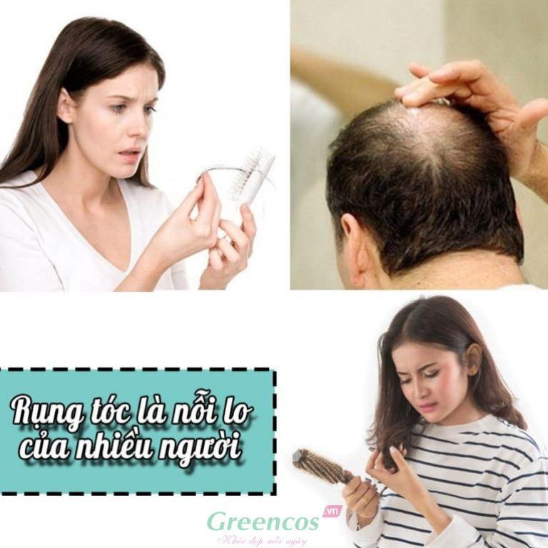 Rụng tóc nguy hại về sức khỏe, rụng tóc đang là nỗi lo của nhiều người